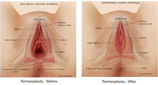 VAGINOPLASTY - Surgical Tightening - Vaginoplasty.com - All About ...